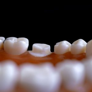 Dentista Bilbao