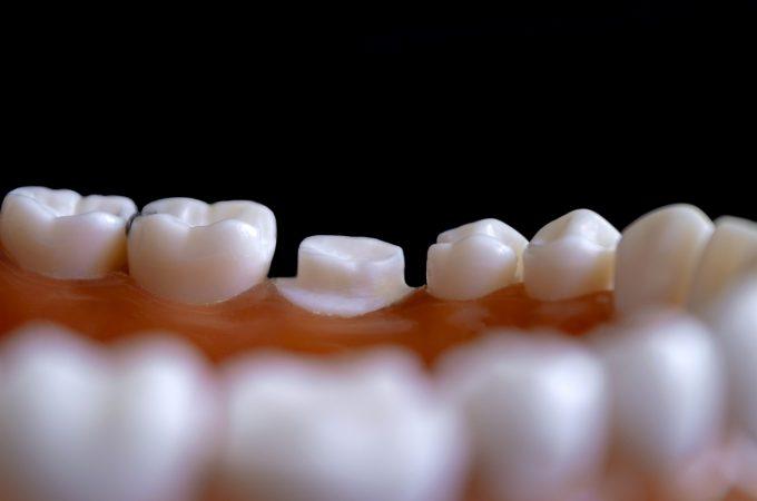El cuidado bucal es determinante para una buena salud