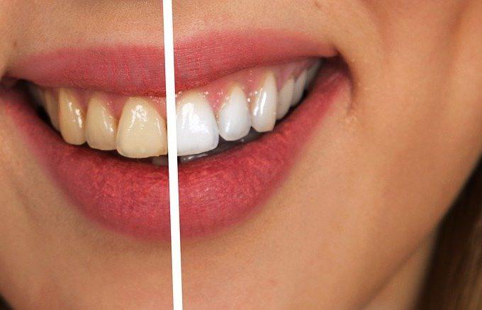 En una clínica de blanqueamiento dental  date el permiso de sonreír sin temor